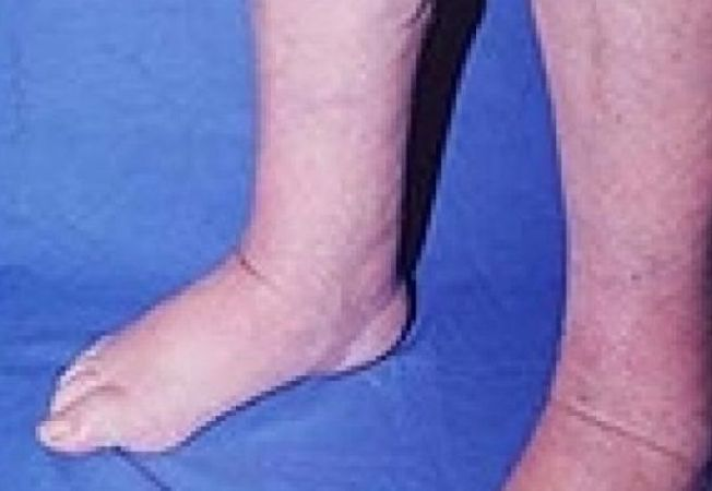 picioare umflate si rosii umflarea articulației pe picior cu durere