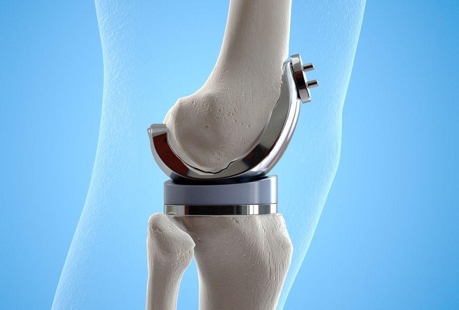 prescripție bună a articulației genunchiului)