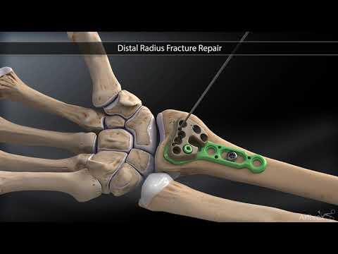 Cum recunosti o fractura | thecage.ro