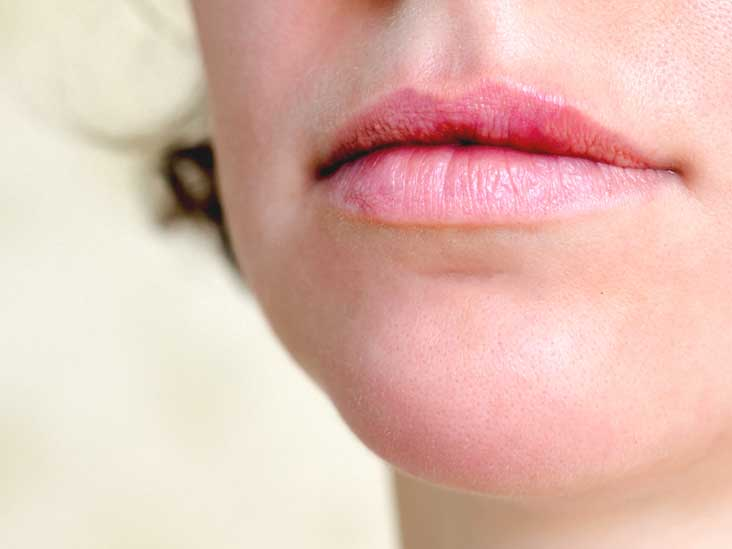 Hpv skin lips Tratamentul cu laser al varicele kostanay