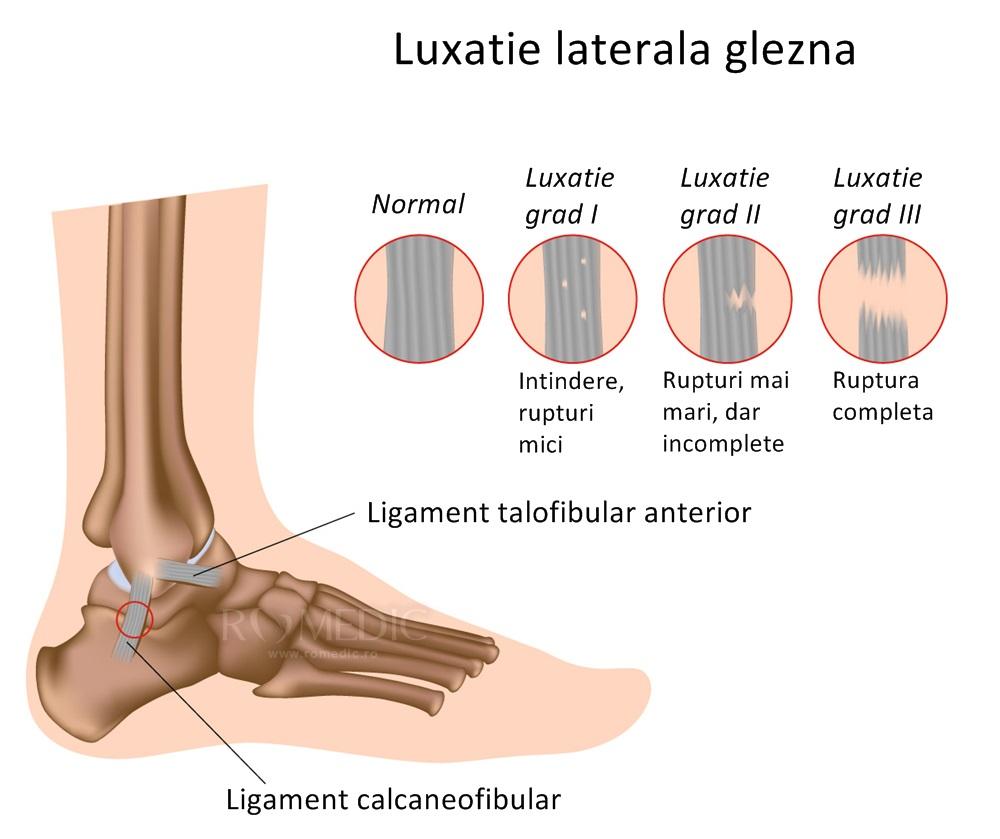tratamentul articulației gleznei după luxație)