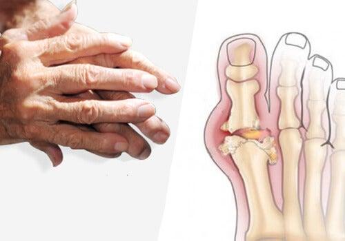 tratamentul artritei artritei