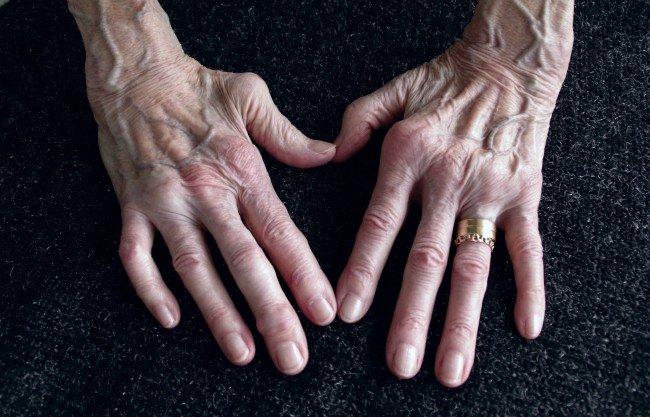 tratamentul artritei cu mâinile dureri articulare polineuropatie