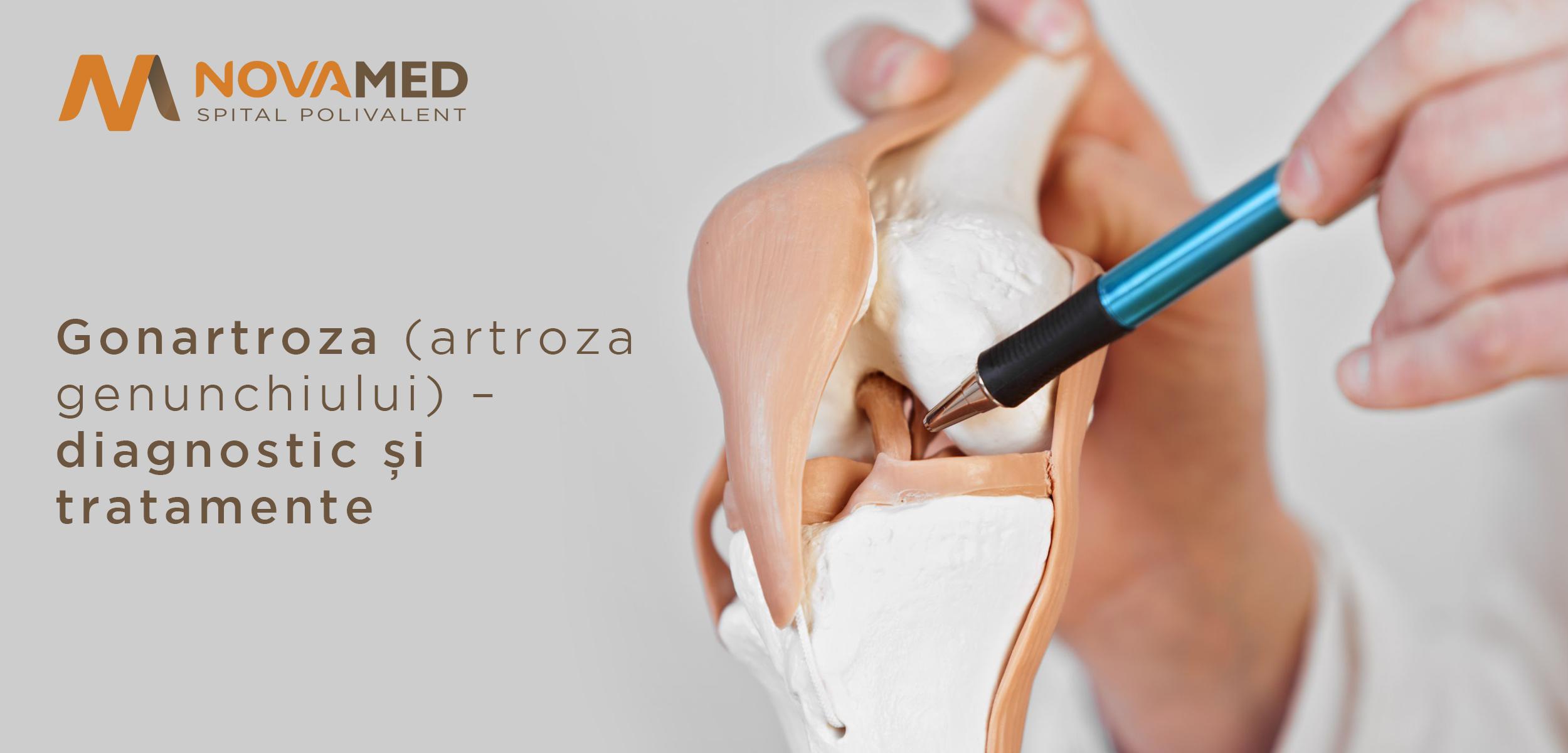 tratamentul artrozei și gonartrozei