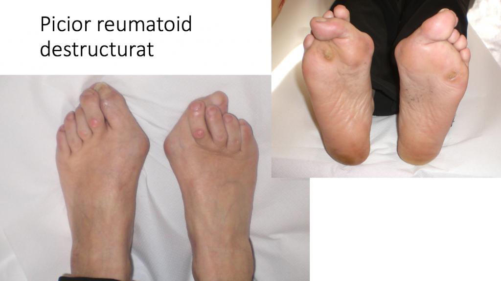 tratamentul artrozei reumatoide a piciorului)