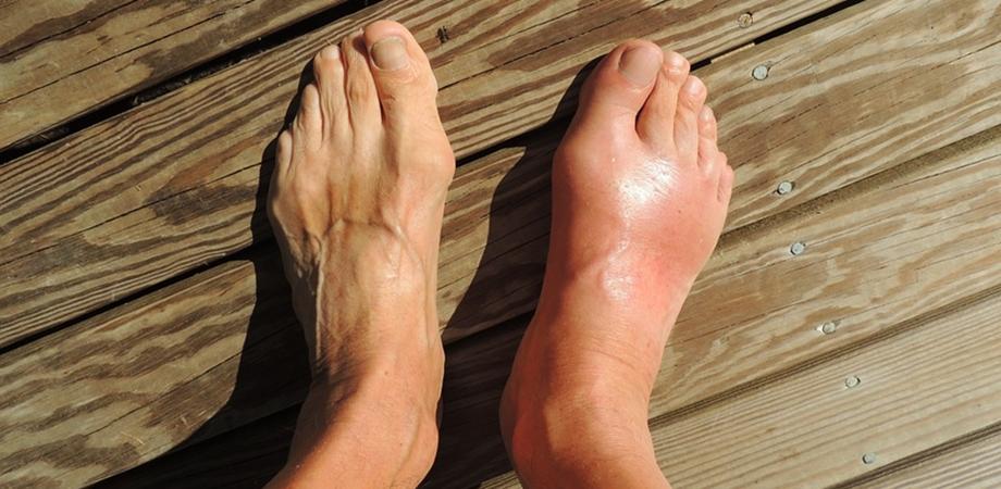 tratamentul degetelor cu artrita guta)