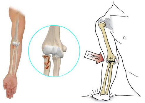 tratamentul fracturii condilului cotului)