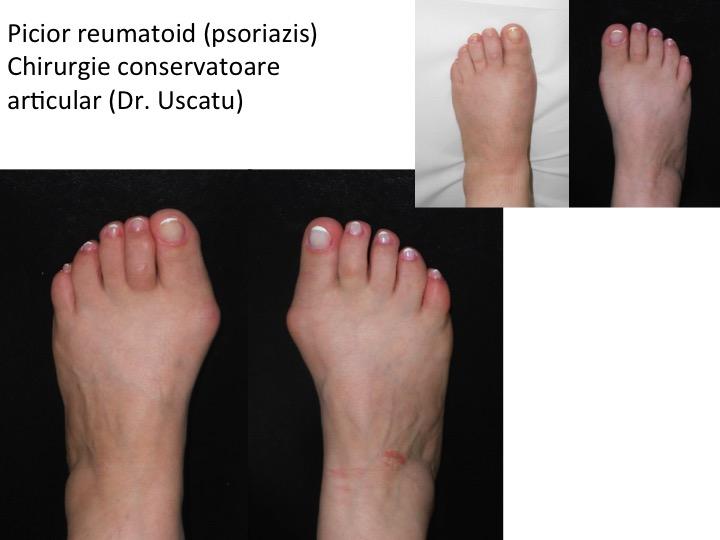 tratamentul leziunilor articulare ale piciorului