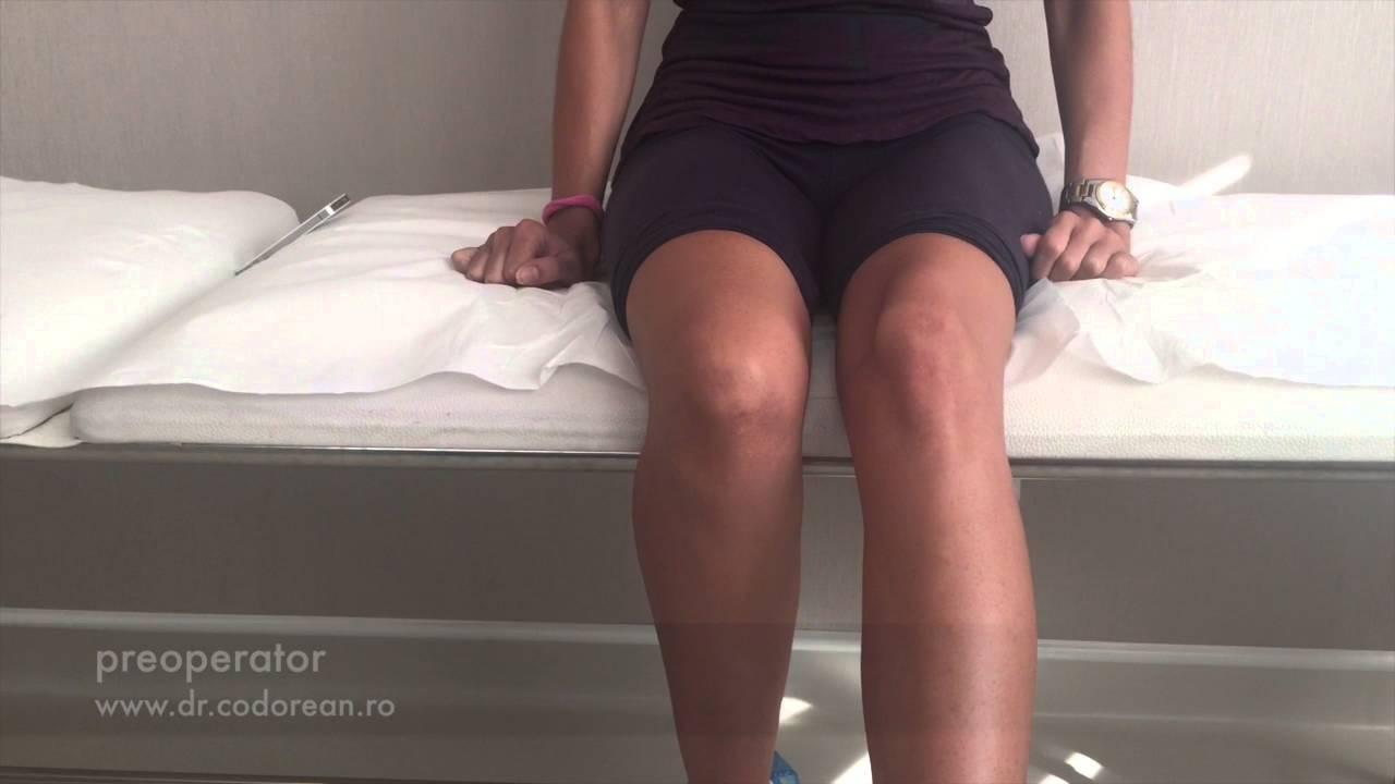 tratamentul luxației obișnuite a genunchiului tratamentul epicondilitei articulare a cotului cu homeopatie