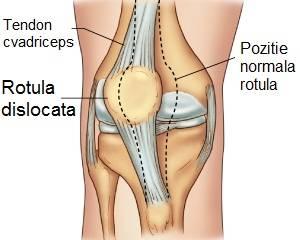 tratamentul simptomelor luxației genunchiului