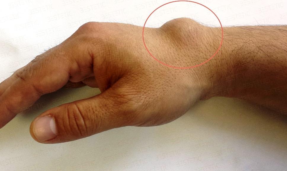 tratamentul stiloiditei la încheietura mâinii)