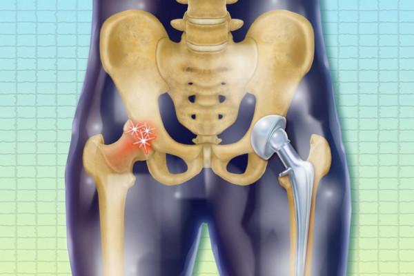 tratamentul trombozei articulației șoldului