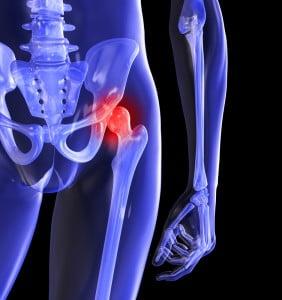 trezindu-se dintr-o durere în articulația șoldului cum să tratați osteoartrita dureri osoase