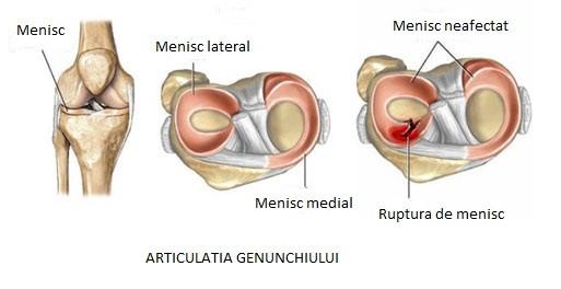 umflarea articulației genunchiului cu o ruptură de menisc)