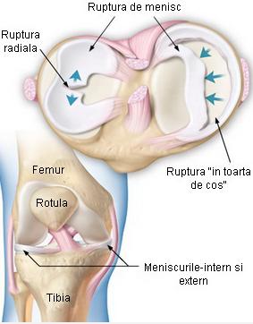 umflarea articulației genunchiului după îndepărtarea meniscului)