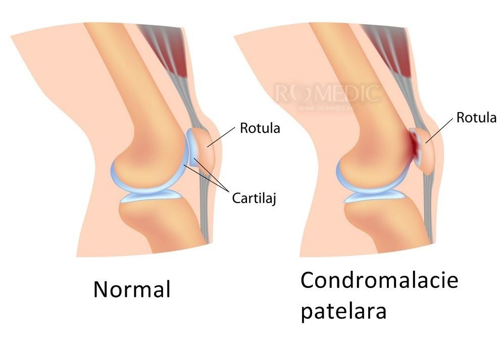 umflarea articulației genunchiului stâng