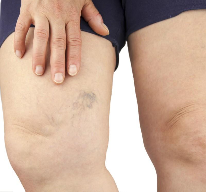 Durere în piciorul de deasupra și doare să meargă - acesta este un simptom al unei răni sau boli