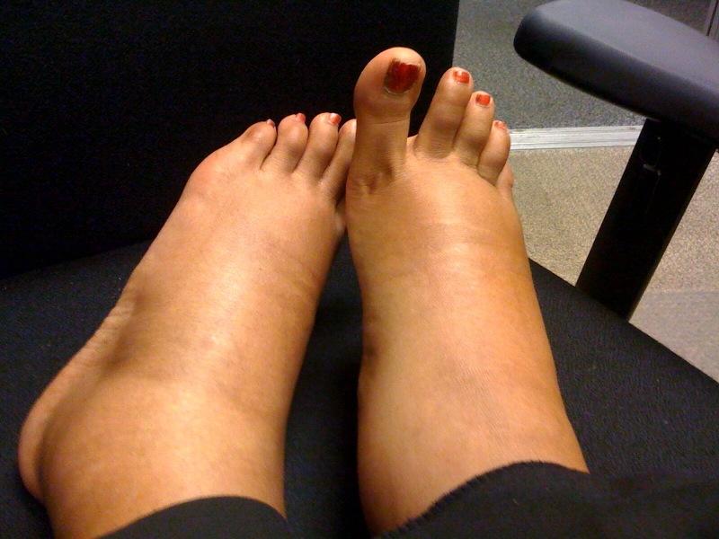 umflarea picioarelor sub articulație)