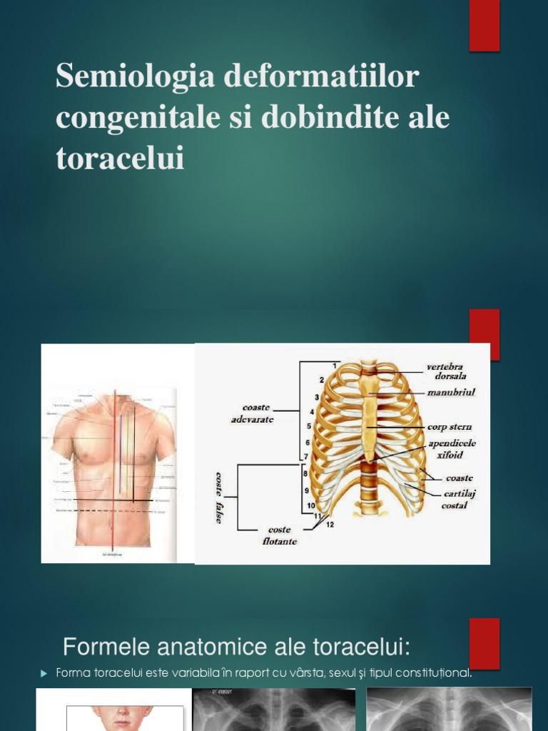 articulatiile toracelui dureri articulare și pulmonare