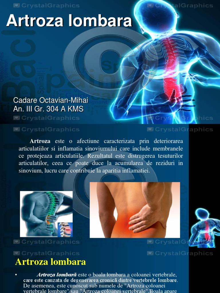 modificari artrozice coloana lombara
