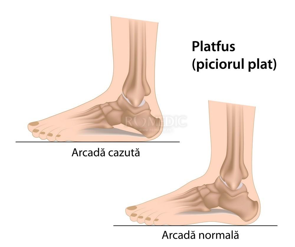 cu dureri articulare  piciorul se zvâcnește