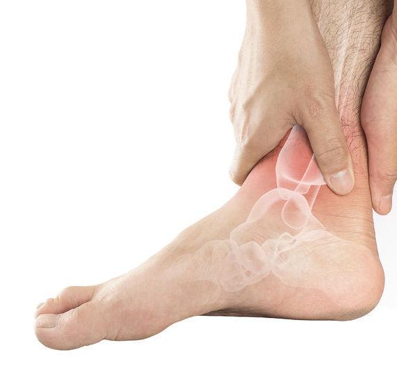 Tratament naturist pentru guta la picioare. Remedii naturiste pentru tratarea si prevenirea gutei
