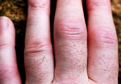artrita maini tratament